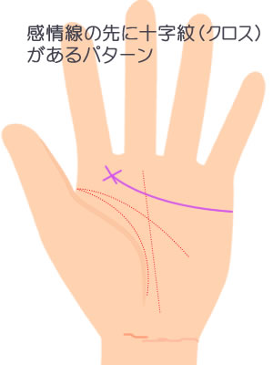 感情線の先端に十字紋(クロス)があるパターンです。