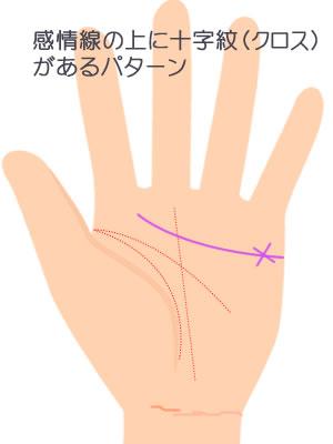 感情線の上に十字紋(クロス)があるパターンです。
