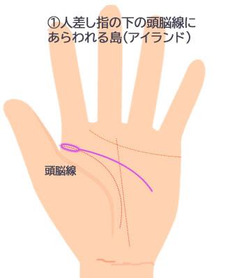 人さし指の下の頭脳線にあらわれる島の意味です。