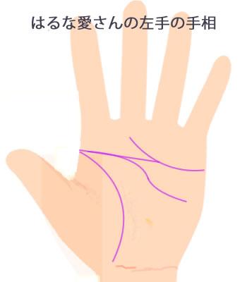 はるな愛さんお左手・変形ますかけ線です。