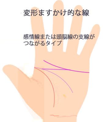 感情線または頭脳線の支線がつながる変形ますかけ線です。