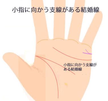 小指に向かう支線があるタイプです。